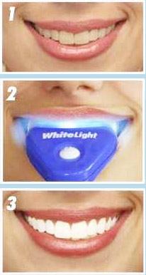 Отбеливание зубов отбеливание зубов